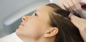 Mesotherapie cheveux Turquie