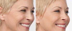 Traitement botox Turquie