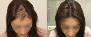 resultats greffe cheveux turquie
