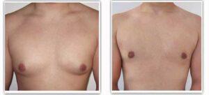 Gynécomastie Turquie photos avant et après