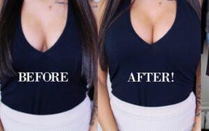 Avant et après symétrisation seins Turquie