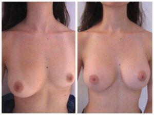Lifting et symétrisation des seins