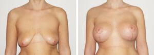 Photos avant apres lifting seins Turquie