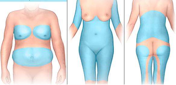 Les conditions à remplir pour être éligible à une liposuccion