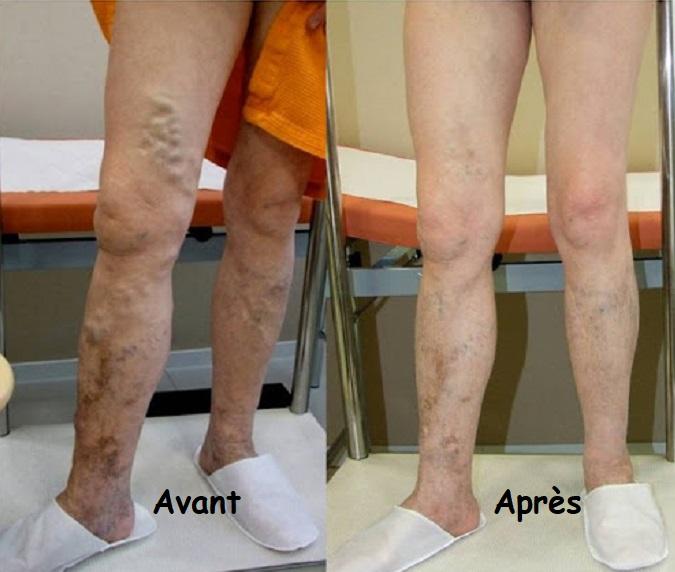 traitement varices avant après